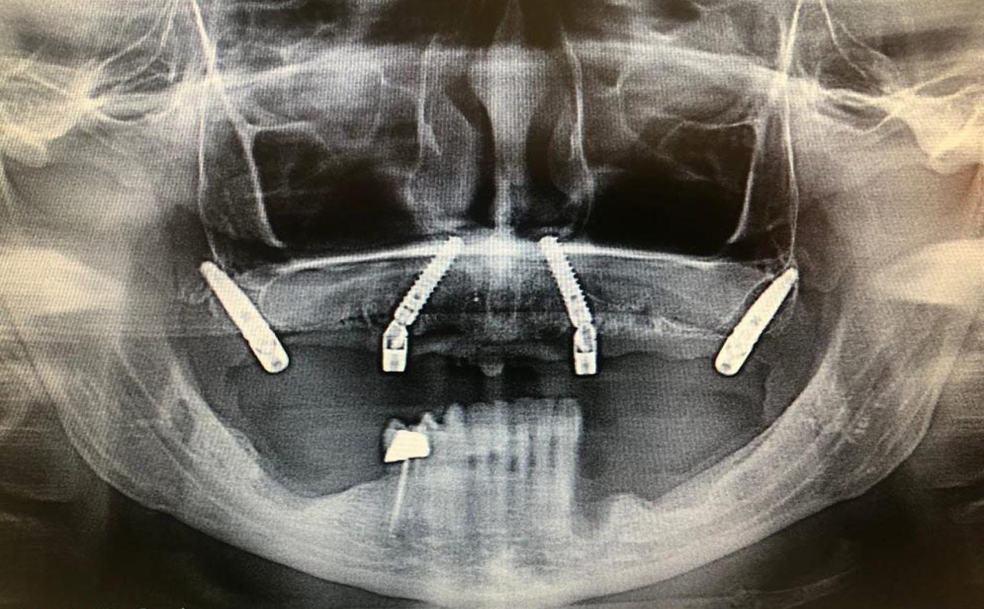 implantologia carico immediato cremona